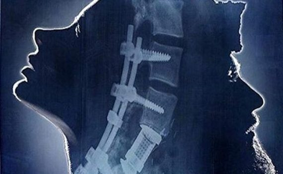 "Affiche du film ""Fractures"""
